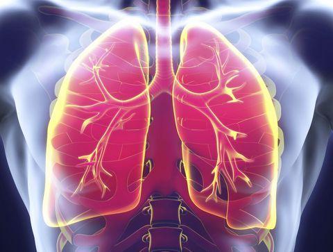 Qu'est-ce qu'une infection pulmonaire?