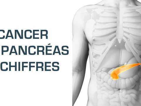 Le cancer du pancréas en chiffres