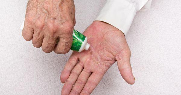Pikkelysömör kezelése sophorával és tömöríti frakcióval