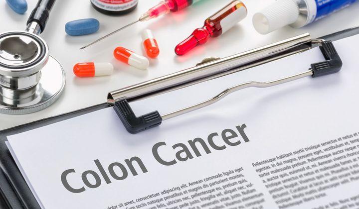 Le Traitement Du Cancer Colorectal Prise En Charge Du Cancer Du Colon Doctissimo