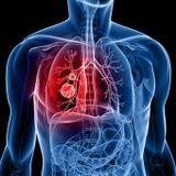 Nouvelle arme contre certains cancers du poumon