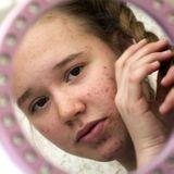 Comment aider mon ado à traverser sa phase d'acné ?