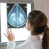 Les différents types et sous-types de cancer du sein
