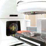 La radiothérapie contre le cancer du sein : indications, action, effets secondaires