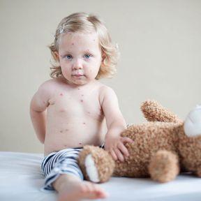 La varicelle chez le bébé