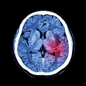 L'accident Vasculaire Cérébral ou AVC