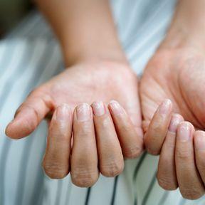 L'ongle blanc : des lésions traumatiques
