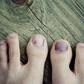 L'ongle bleu : une intoxication médicamenteuse